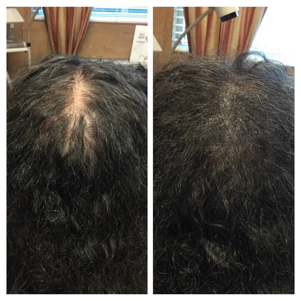 micropigmentation before and after