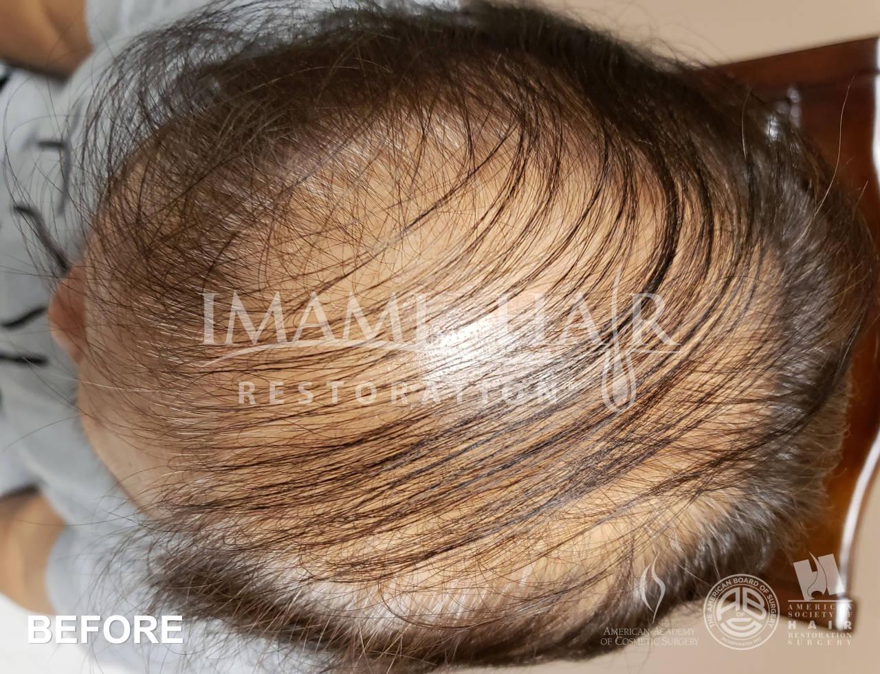Severe Ludwig II Hair Loss