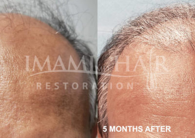 FUT with PRP Before and After 5 months, Front View