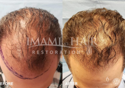 FUE with PRP Before and After 5 months, Front View