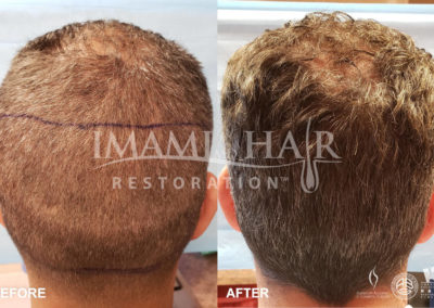 FUE with PRP Before and After 5 months, Back View