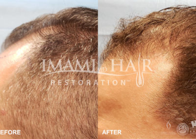 FUE with PRP Before and After 5 months, Left View