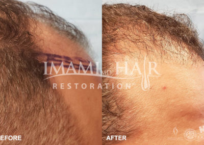 FUE with PRP Before and After 5 months, Right View