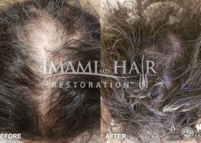 Before and After PRP with Scalp Micropigmentation