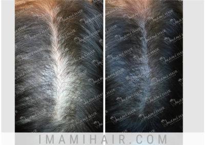 Female: Scalp Micropigmentation