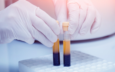 What is Platelet-Rich Plasma (PRP)?