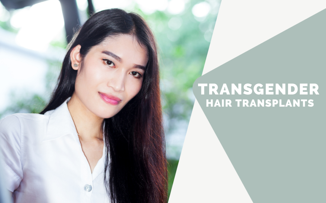 Transgender Hair Transplants: How Much Can They Help Transitioning?